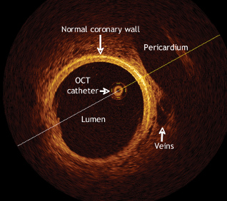 optical coherence tomography(oct)